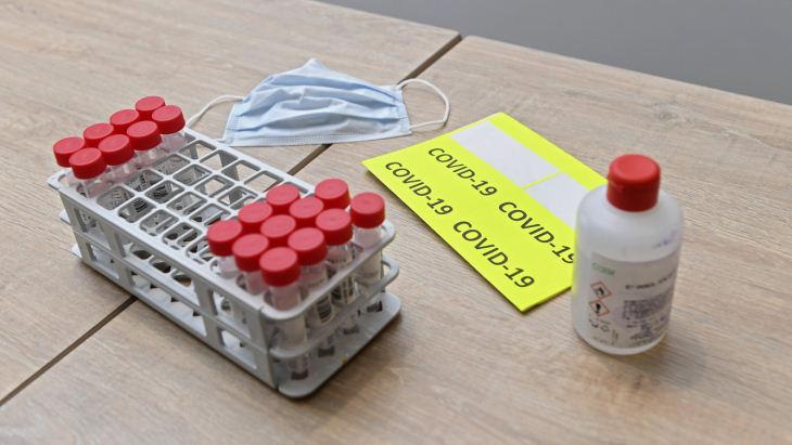 В «Дижоне» выявили два случая заболевания коронавирусом